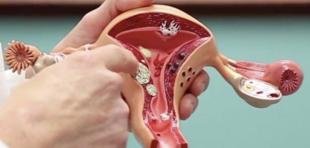 海扶刀與懷孕的關係
