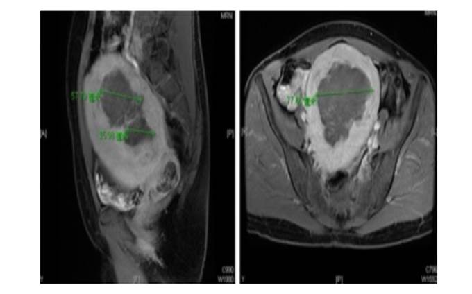多發性肌瘤合併巨大肌腺症