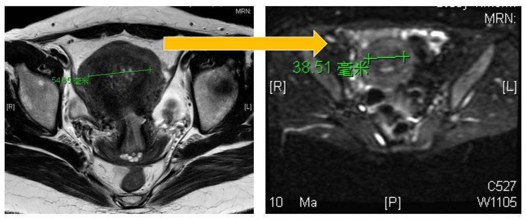 海扶刀治療小腺瘤—波濤中的平靜