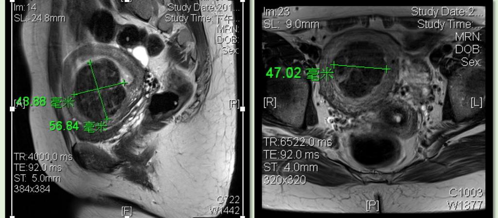 海扶刀治療單一前壁粘膜下肌瘤