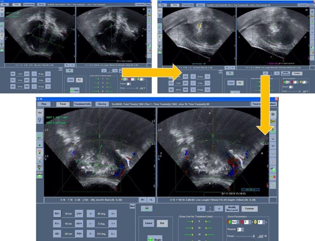 海扶刀單一大肌瘤治療