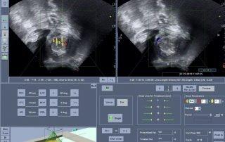 子宮粘膜下肌瘤合併嚴重貧血及經痛海扶刀治療