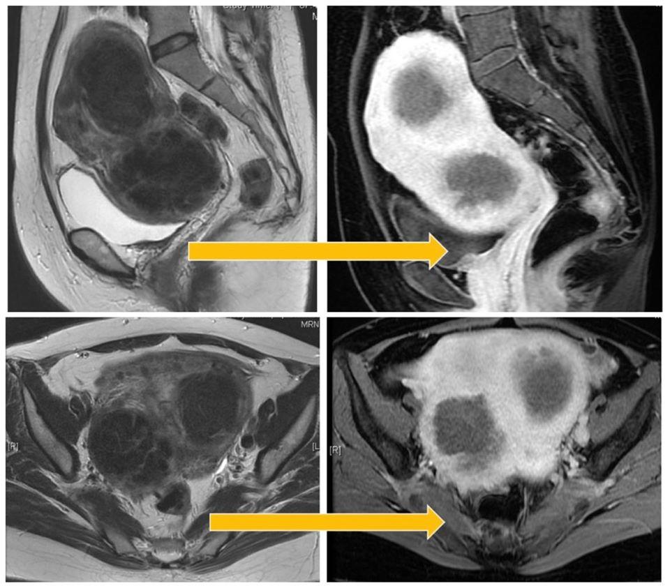 兩顆巨大肌瘤海扶治療免挨刀