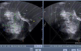 巨大肌腺症合併多發肌瘤海扶刀手術
