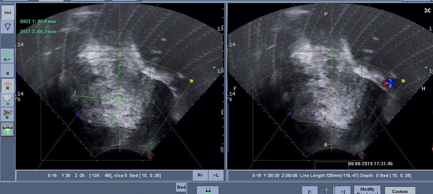 雙重危機巨大肌腺症合併多發肌瘤海扶刀治療