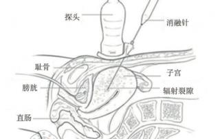 子宮肌瘤肌腺症微波射頻消融原理