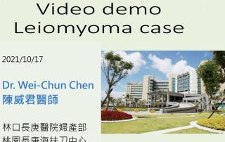 子宮肌瘤海扶刀治療真實案例影片分享