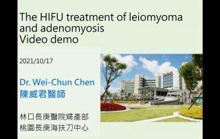 海扶刀治療子宮肌瘤肌腺症教學影片