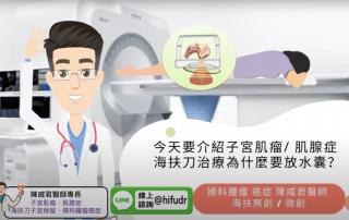 子宮肌瘤肌腺症在海扶刀治療如何避免膀胱損傷?